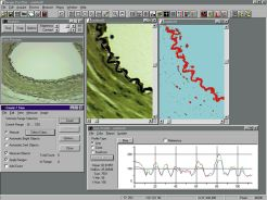 Machine Vision Software & Image Analysis Software | AES